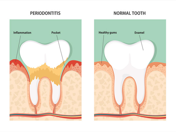 Diagram of periodontitis and health tooth at Hickerson & Associates, DDS. PC. in Houston, TX